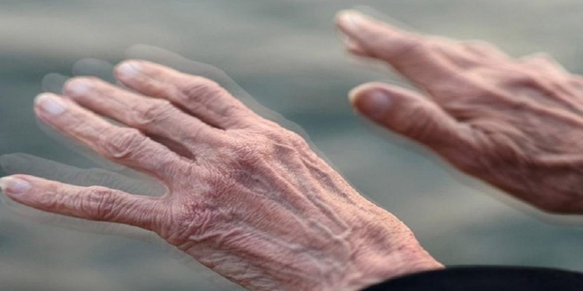 بیماری پارکینسون و راه درمان آن