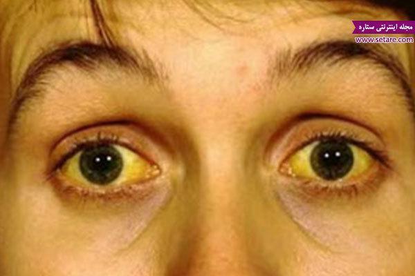 علایم اولیه بیماری هپاتیت چیست و درمان آن چگونه است؟