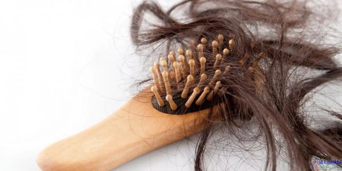 5 بیماری پنهان را از ظاهر موهای تان تشخیص دهید